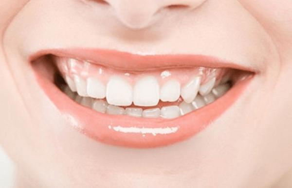 牙齿冷光美白价格