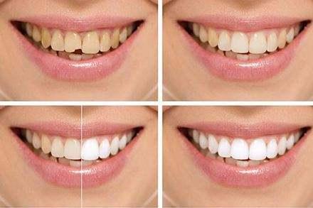 四环素牙齿