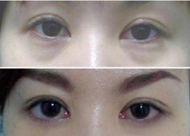 激光去眼袋的有效有哪些