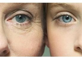 像素激光能治疗哪些肌肤问题