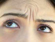 中面部除皱术成效好吗