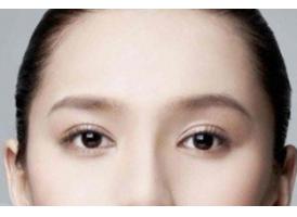 上海双眼皮修复手术整形哪家好