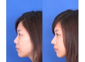 鼻孔缩小术,改善你的鼻部缺陷