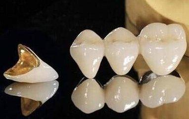 美莱口腔医生:如何降低烤瓷牙副作用风险