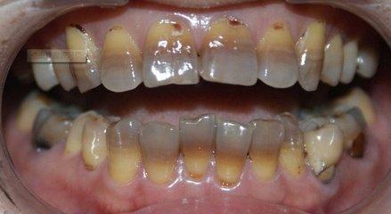 上海美莱口腔医生:四环素牙如何美白
