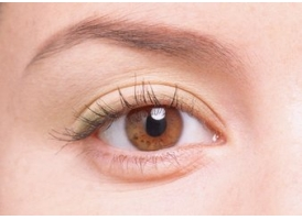 上海双眼皮手术多少钱与哪几点因素有关