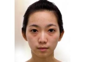 上海做眼袋手术需要花多少钱贵不贵