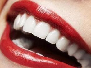 上海做冷光牙齿美白多少钱