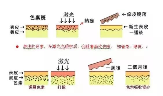 整形术后注意事项 整形后要如何饮食 较好的整形