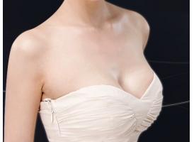 乳房下垂矫正 恢复女性傲人酥胸