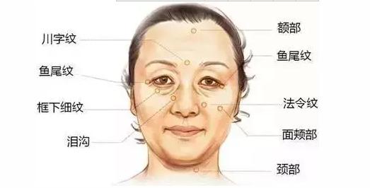 你的脸上会出现17种皱纹,你该怎么对付他们?
