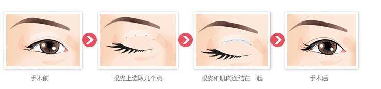 上海韩式无痕双眼皮有什么优势