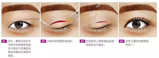 【上海美莱资讯】双眼皮的埋线法和切开法