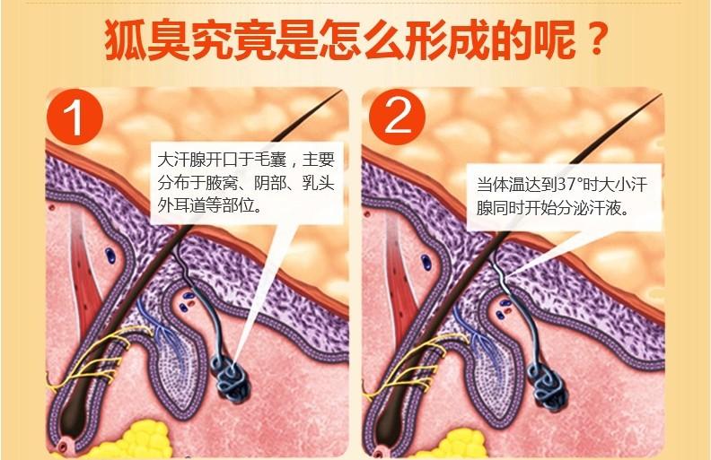怎样治疗腋臭 美莱有针孔消融汗腺抽吸术