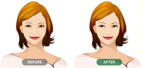 毛孔粗大怎么改善图片