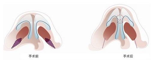 """自体软骨隆鼻手术 打造""""真""""鼻子"""