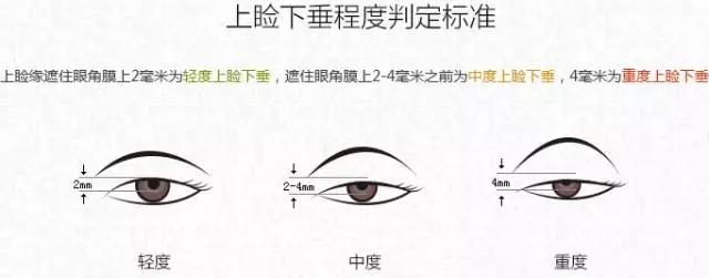 双眼皮术后修复