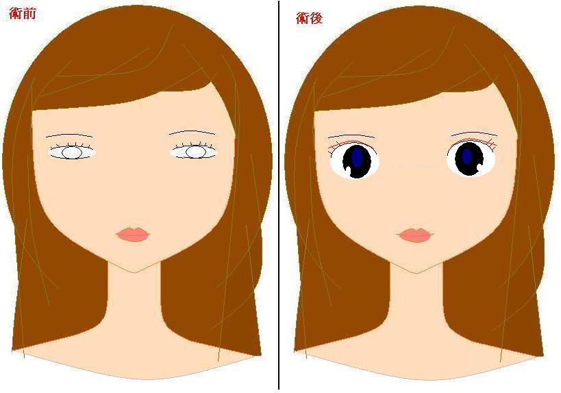 了无痕双眼皮术后恢复需要注意什么图片