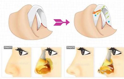 驼峰鼻矫正术
