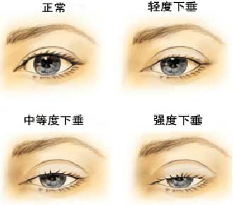 眼睑下垂要怎么矫正