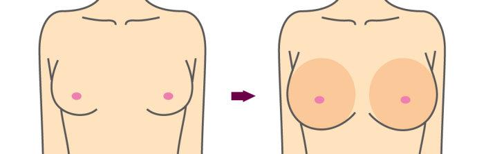 玻尿酸注射隆胸效果如何