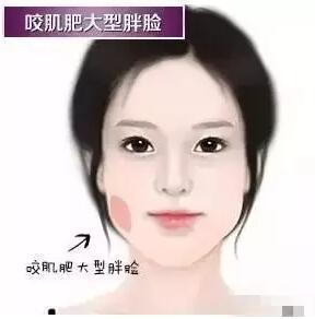 你适合吸脂瘦脸吗