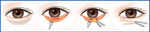 温州手术去眼袋多少钱