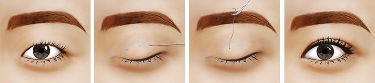温州割双眼皮手术费用贵吗