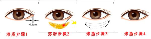 吸脂去眼袋效果好吗