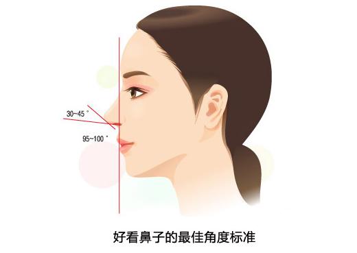 自体软骨移植隆鼻术效果如何