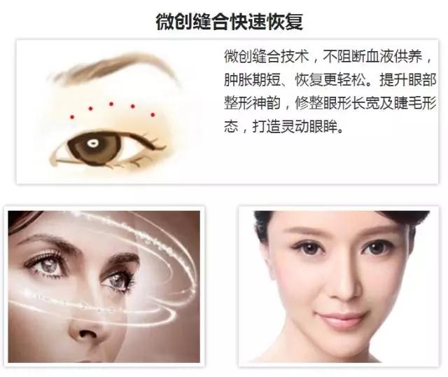 上海美莱杜园园健康美眼真人秀大招募