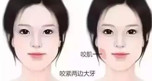 瘦脸针搞定咬肌,让你不留痕迹的变小V脸