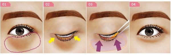如何能有效去除眼袋