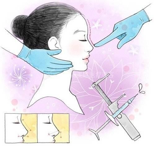 假体隆鼻有哪些优势