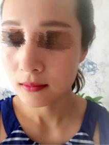 光子嫩肤祛斑效果好吗