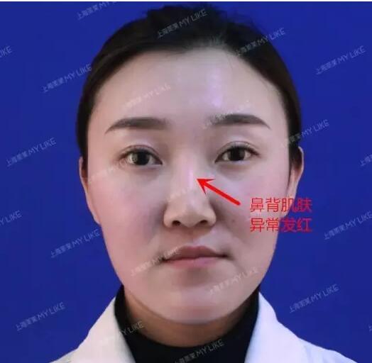 上海鼻子修复哪个医生好