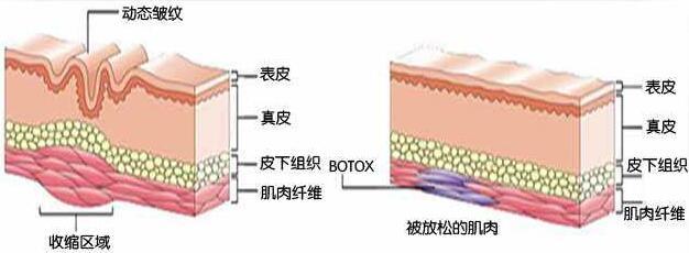 botox除皱