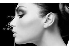 鼻型矫正的优势是什么