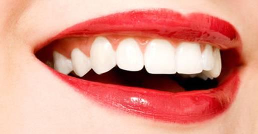 瓷贴面美白牙齿成效