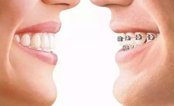 隐形矫正牙齿美观