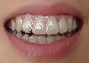 隐形矫正牙齿清洁