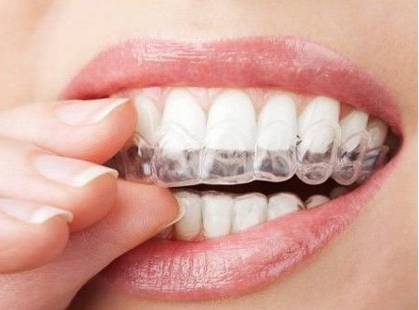 美容冠牙齿矫正多少钱