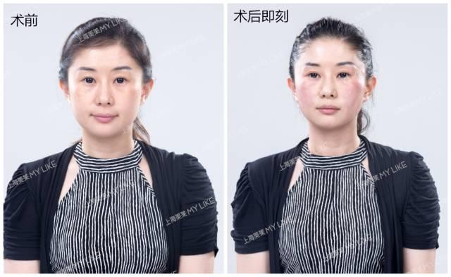 上海美莱面部除皱案例