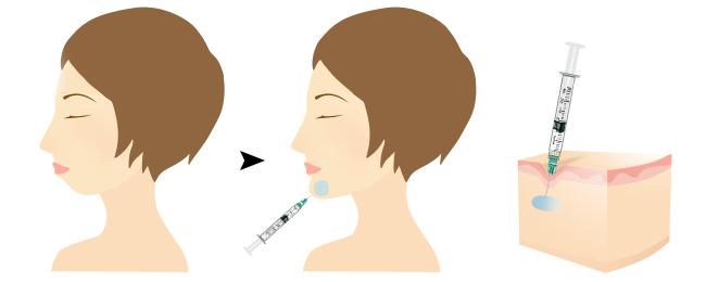 玻尿酸丰下巴过程