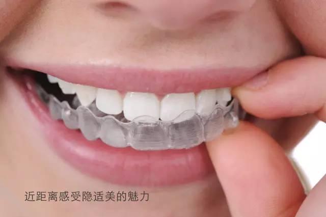 隐形牙齿矫正多少钱
