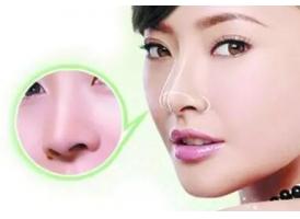 上海自体组织隆鼻效果好不好