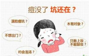 上海去痘印有哪些方法