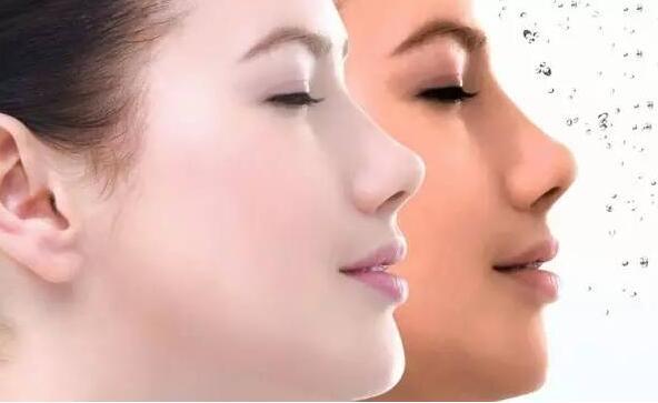 上海鼻孔整形术效果