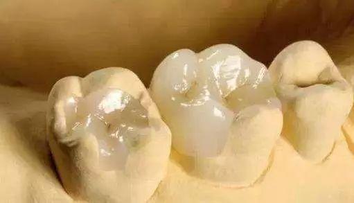 玻璃离子牙齿修复