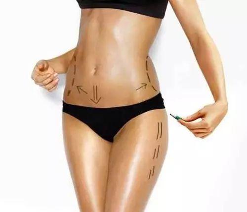 吸脂减肥效果